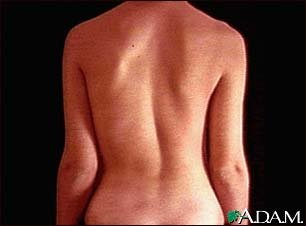 Scoliosis Archives Archibald Chiropractic Clinics